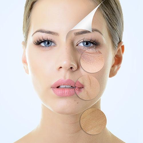 Microneedling bei LD Beauty Medical Cosmetics